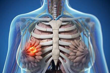 导致乳腺癌发病有哪些因素 该怎么护理