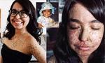 女子患罕见皮肤病浑身斑点