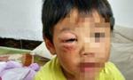 男子因老婆离家出走 虐待4岁亲生子在朋友圈晒图