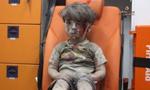 叙利亚5岁男童空袭中逃生 他的眼神刺痛了世界