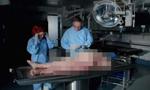 英纪录片解剖108公斤重肥胖女尸 揭肥胖症危害