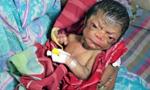 孟加拉一男婴患罕见早老症 被认为是神的礼物