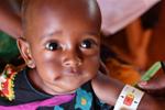 旱灾下急性营养不良的儿童