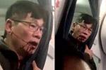 美联航与遭暴力拖拽下机乘客和解