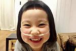 患病女孩时刻带输氧管 笑得比谁都灿烂