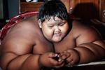 """""""世界最胖男孩""""380斤 缩胃手术或减200斤"""