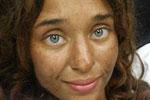 25岁女生森林里迷路1个月 被发现时瘦了45斤