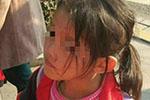 6岁女孩疑遭生母虐打满身是伤