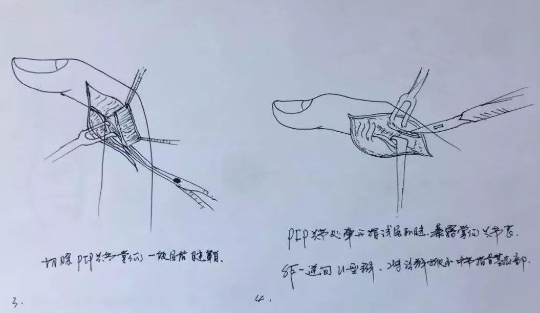 澳门金沙网上娱乐网址:被医学耽误的画家_宁波医生十几分钟画好六张手术示意图