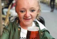 丹麦女子患成骨不全症 打喷嚏会骨头断裂