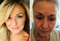妇女化妆25年从不卸妆险致双目失明