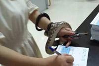 能不能给蛇一点面子...姑娘被蛇咬后把蛇缠手上淡定填病历