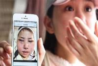 中国人少了越南人来了!韩媒:越南人赴韩整容日渐火爆