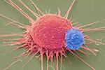 诺奖肿瘤疗法为啥对部分患者失灵?中国科学家找到原因之一