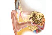 人工耳蜗为何值20万?丢失后需重新开颅植入?