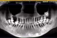 28岁姑娘一排牙都被医生拔光 这个习惯害苦她