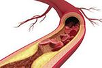 红酒、洋葱和醋都不能软化血管!最靠谱的办法是这五点