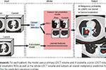 谷歌再推人工智能早期肺癌检测系统 准确率94%