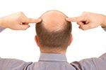 植发缘何成为整形新宠?中国男性脱发率高达20%
