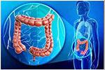 准确率80%!两种肠道细菌增多 或意味早期大肠癌发生