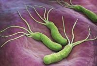 体检查出幽门螺杆菌 该不该怪食堂的餐具