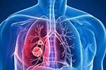 最长潜伏期约14天!国家卫健委发布新版新型肺炎防控方案