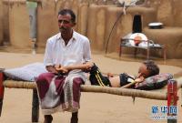 也门:营养不良儿童