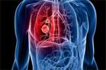 51岁男子腹痛半月 一查竟是肺癌晚期 医生提醒:每年要体检