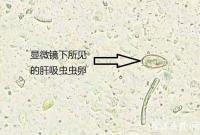 这种生鱼片别吃!宁波已发现4例类似肝吸虫感染疾病