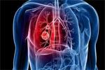 气温骤降 呼吸系统疾病发作、心脑血管意外的患者激增